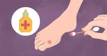 Khử trùng và bôi thuốc lên vùng da bị phồng rộp
